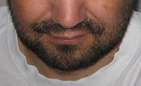 10dnevna brada
