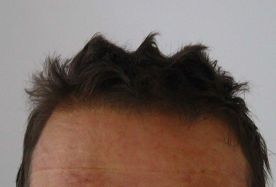 Čeladarska frizura