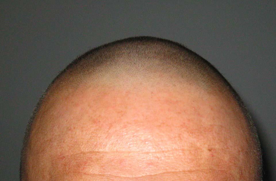 Športna frizura